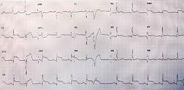 Infarto De Miocardio Con Elevación Del Segmento ST.