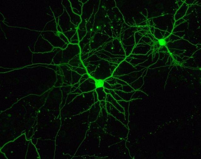 Dos neuronas, en cultivo.
