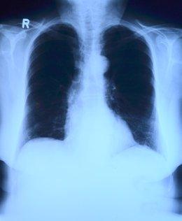 Primeras evidencias de que la grasa se acumula en los pulmones de las personas c