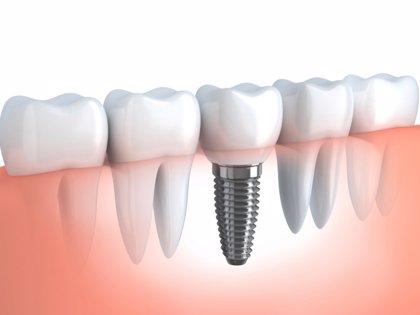 Nuevos implantes dentales acelerarán la oseointegración y prevendrán infecciones periimplantarias