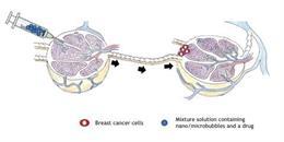 El tratamiento se inyecta en un ganglio linfático y viaja a través del sistema linfático para llegar al cáncer.