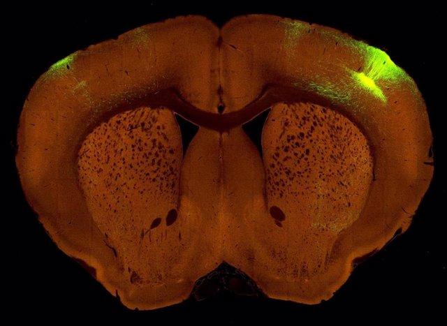 Sección del cerebro de un ratón.