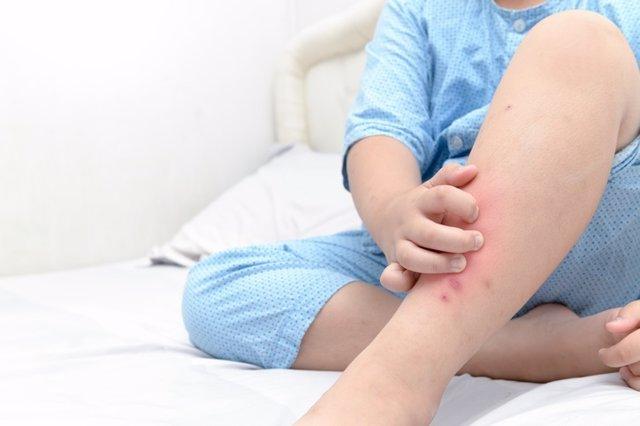 Rascarse las piernas, hinchazón
