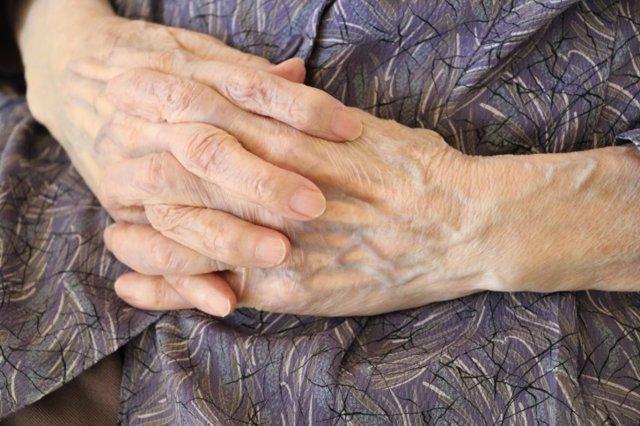Manos, artrosis