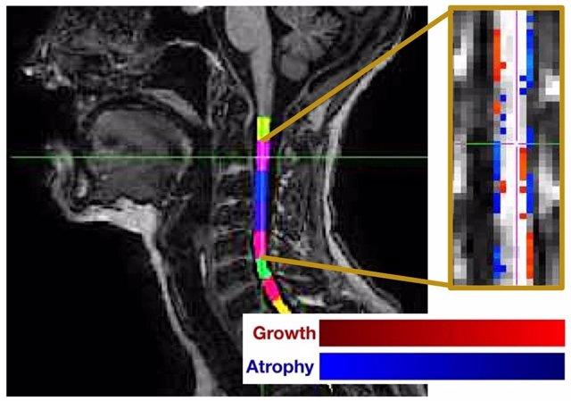 Observación del grado de atrofia de la médula espinal