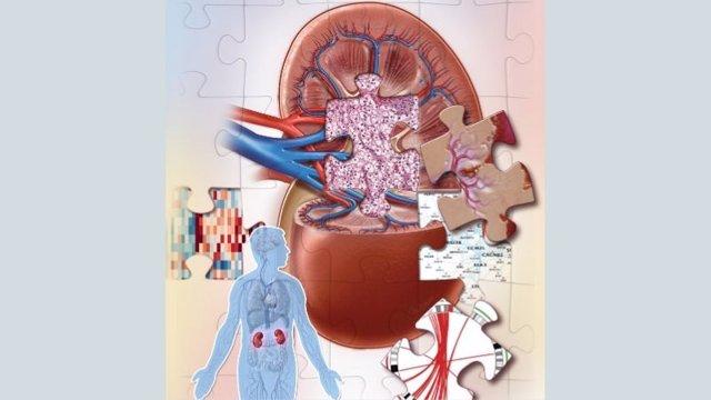 Un estudio identifica cuatro nuevos subtipos de cáncer de riñón