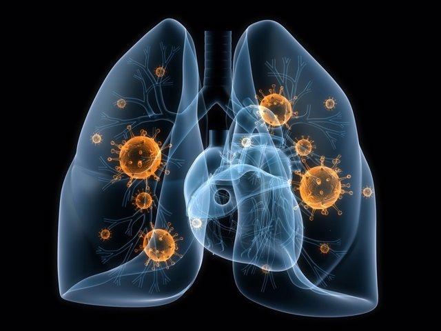 Un 'señuelo' de proteínas obstaculiza el crecimiento del cáncer de pulmón en rat