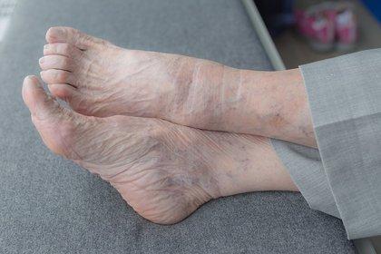 Salud.-El 20% de los diabéticos que ingresan en el hospital lo hacen por problemas en los pies