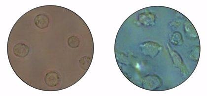 Las células de leucemia pueden transformarse en no cancerosas