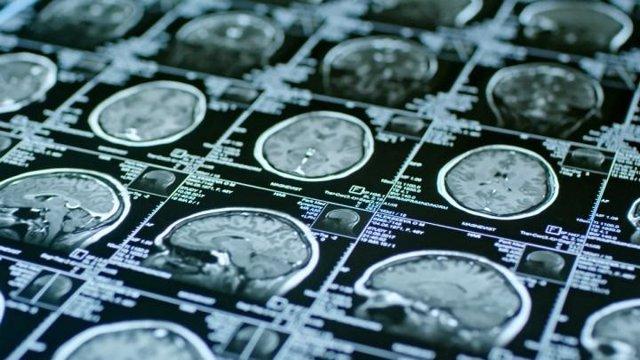 Imágenes de resonancia magnética de un cerebro