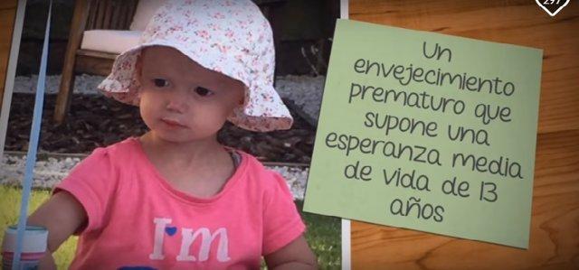 Alexandra, una niña de dos años con progeria