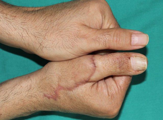 Imágenes de manos con el pulgar trasferido desde el pie.