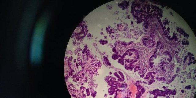 Metástasis de un tumor intestinal primario en el cerebro.