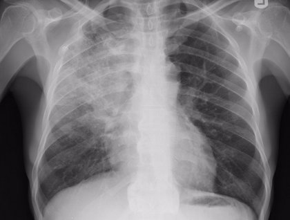 Unas células pulmonares son capaces de ayudar a prevenir la neumonía
