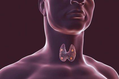 Una mutación genética hereditaria predispone a cáncer de tiroides