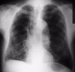 Pulmones en una imagen de archivo
