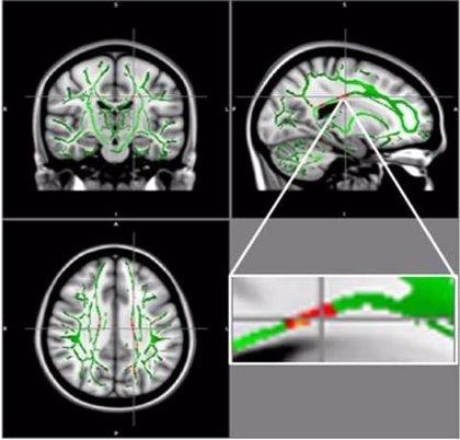 Encuentran daños cerebrales en adolescentes obesos que les hacen seguir comiendo