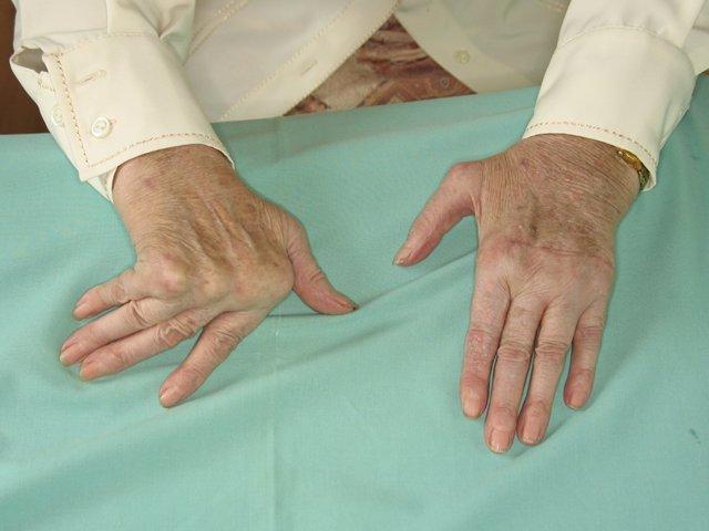 Deformidad simétrica con artritis reumatoide