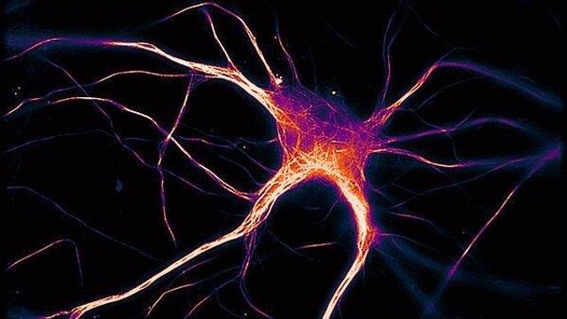 Una célula cerebral funcional que expresa tau enferma propia del Alzheimer.