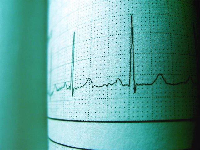 Imagen de un electrocardiograma