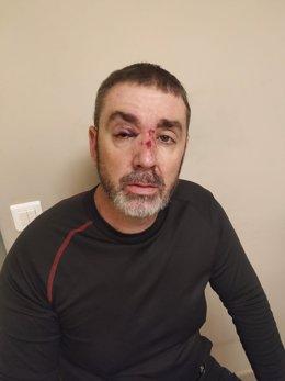 Un dels vigilants de seguretat de Renfe agredits per un grup de joves.