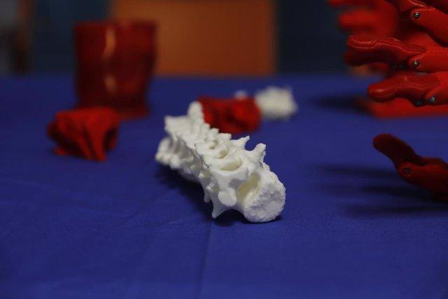Impresiones 3D de varios huesos del cuerpo humano en el Hospital Son Espases de Palma.