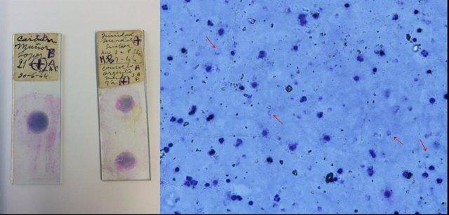 Portaobjetos de microscopios médicos de España en los años 40 con sangre infectada de malaria.