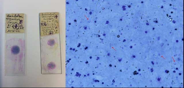 Unas muestras de sangre de los años 40 desvelan la relación entre la malaria eur