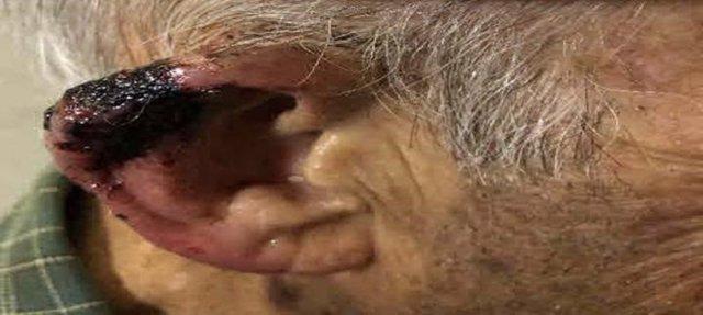 Pretratamiento del oído del paciente: un paciente anciano en terapia anticoagulante con cáncer de células escamosas del oído.