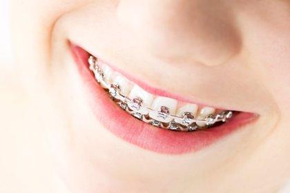 Frutos secos, frutas con hueso, o carne fibrosa, alimentos que es mejor evitar si se lleva ortodoncia