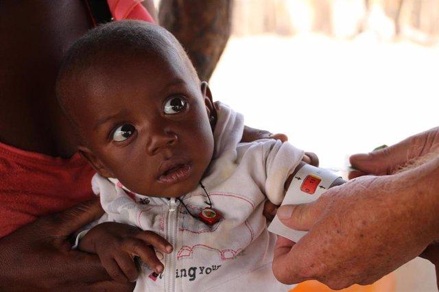 Beto, un niño con desnutricíon en el sur de Angola