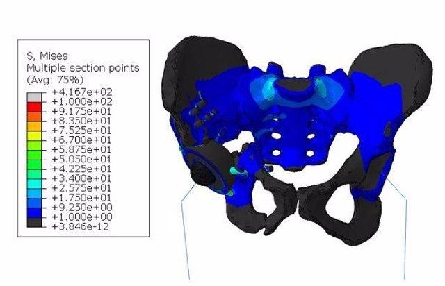 """Distribución general de tensiones en el modelo """"endoprótesis-esqueleto"""" de la estructura biomecánica cuando el paciente está de pie sobre dos piernas."""