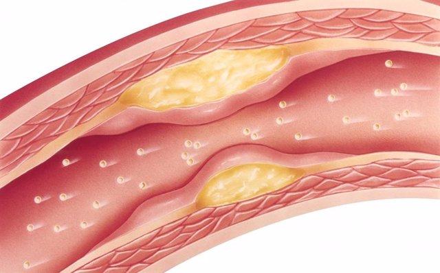 Adherencias en las arterias, colesterol. Estatinas