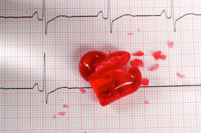 ECG cardiogram with broken heart...