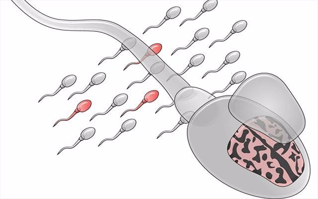Ilustración del mosaico de los espermatozoides. Los espermatozoides mutados se representan en rojo.