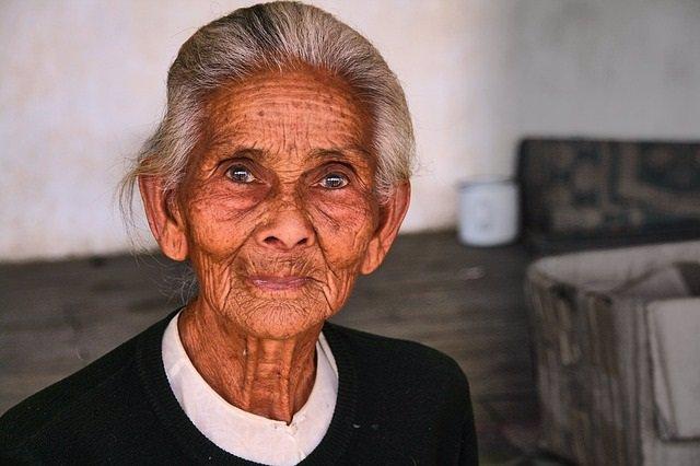 Mujer anciana con desnutrición.