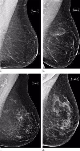 Ejemplos de mamografías con concordancia entre el puntaje de riesgo de aprendizaje profundo y el resultado del cáncer de seno (predicciones verdaderas).
