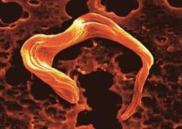 Imagen de microscopía electrónica de barrido del parásito Trypanosoma brucei, causante de la enfermedad del sueño.