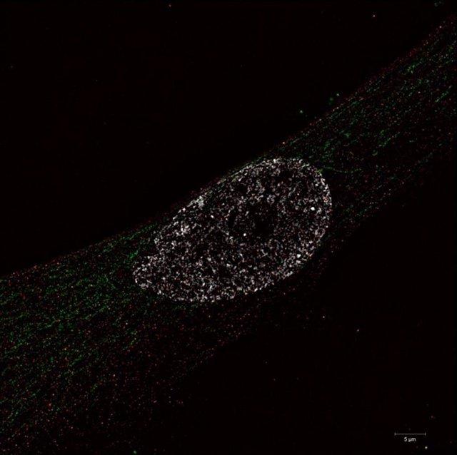 Células inmunomarcadas para la sintasa ATP (verde) para revelar mitocondrias, y HTRA3 (rojo); núcleos teñidos con Hoechst (blanco)