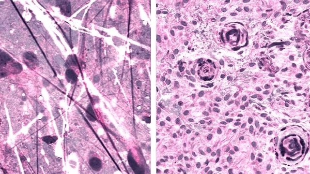 Imágenes histológicas Raman estimuladas de astrocitoma difuso (izquierda) y meningioma (derecha).