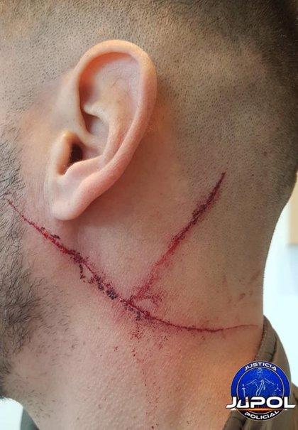 Detenido un hombre por rajar en el cuello a un GEO en una discusión por una plaza de aparcamiento en Alcorcón