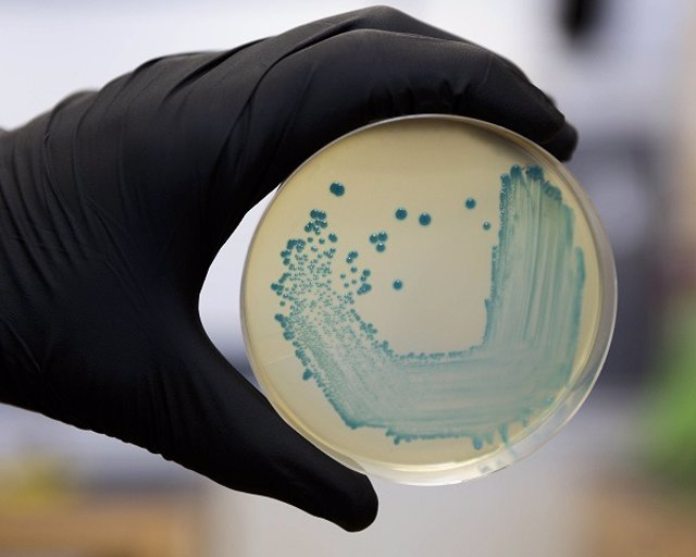 Food Safety Pathogen Listeria Monocytogenes Isolated On Agar From A Food Sample.