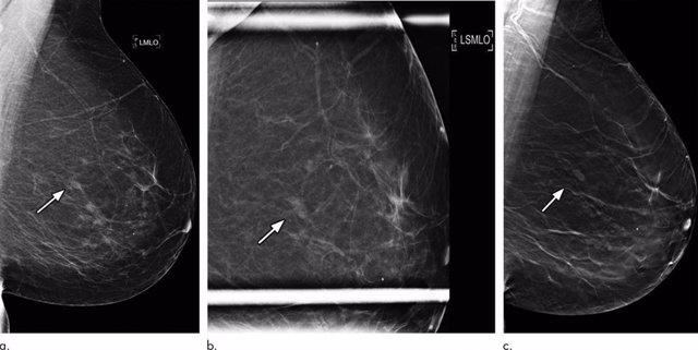 Imagen de una mama con mamografía en 3D. Tumor de mama