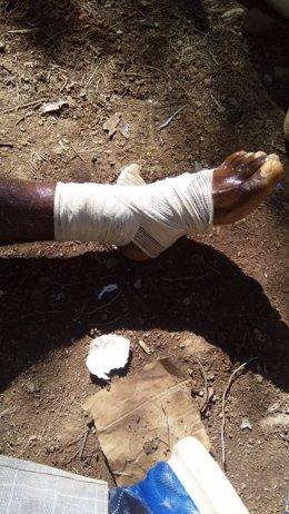 Fotografía de un migrante herido en la frontera de Melilla difundida por la ONG Alarm Phone