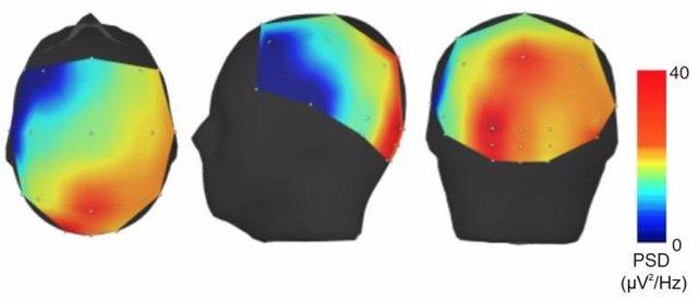 Mapa de intensidad del EEG en pacientes con temblor esencial. La intensidad más alta (rojo) se localiza en la región cerebelosa del cerebro.