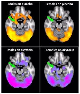 La imagen muestra la activación cerebral a imágenes relacionadas con el consumo de cocaína en consumidores de cocaína masculinos y femeninos con antecedentes de traumatismos infantiles. La flecha verde apunta a la amígdala.