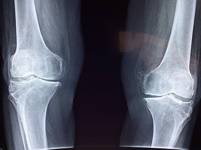 Radiografía de rodilla.