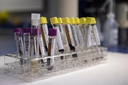 Un análisis de sangre puede predecir la tuberculosis hasta 6 meses antes de los síntomas