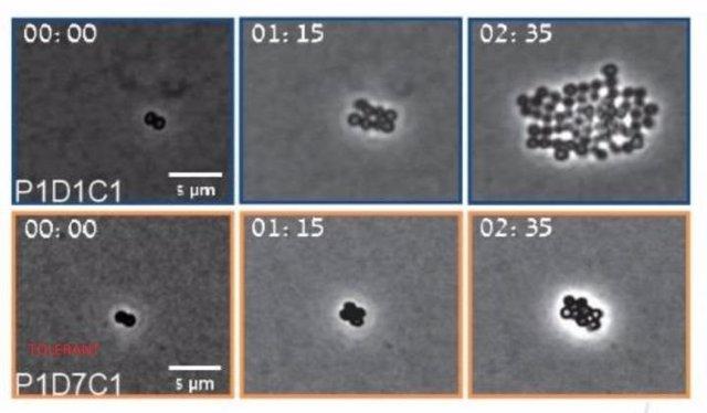 Bacterias de MRSA bajo el microscopio.