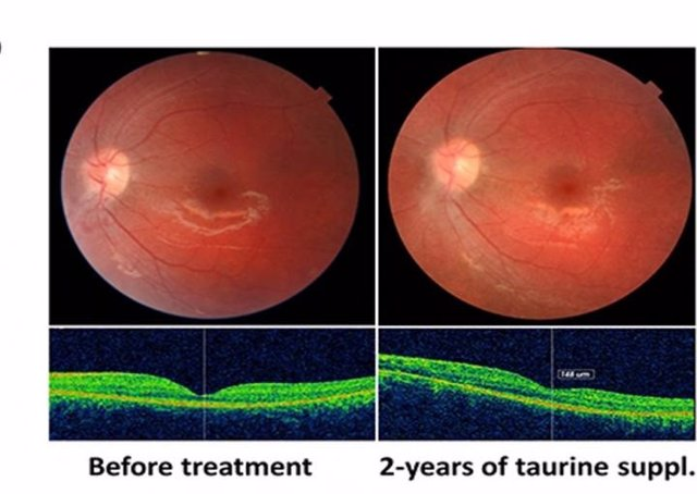 Fotografías del fondo de ojo izquierdo del paciente en la línea de base y después de 24 meses de suplementación de taurina, mostrando la estabilidad anatómica con la preservación de los fotorreceptores.
